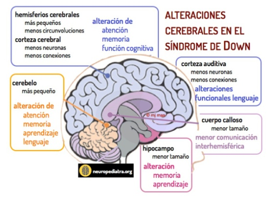 cerebro-sindrome-down